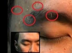 Giòi lúc nhúc bò lên từ da mặt một người đàn ông