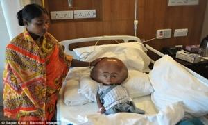 Sau 4 năm giành giật sự sống, cô bé não úng thủy mang kì tích ngày nào đã qua đời