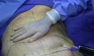 Kinh hoàng sự liều mạng của cơ sở phẫu thuật thẩm mỹ chui