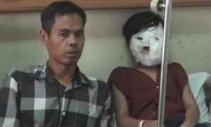 Kinh hoàng: Bà kế bị nghi ngờ ấn mặt cháu gái vào chảo dầu nóng vì không chịu làm việc nhà