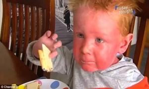 Bé trai có làn da đỏ ứng, đi đâu người lạ cũng nghĩ bị bố mẹ bạo hành