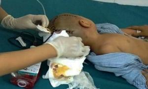 Tin mới vụ bé trai 3 tuổi ngã ở trường mầm non: Bé bị xuất huyết não, phải mổ gấp