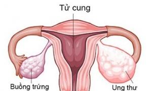 10 dấu hiệu cảnh báo ung thư buồng trứng sớm nhất, chị em cần lưu ý