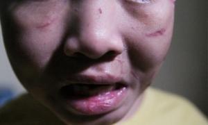 Rơi nước mắt nhìn những vết sẹo chi chít trên cơ thể bé trai 10 tuổi bị cha ruột bạo hành