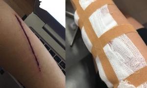 Thiếu nữ bị 2 thanh niên rạch tay cướp túi xách trong đêm