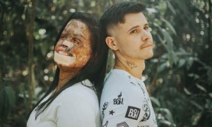 Chàng trai quyết yêu cô gái bị hủy hoại dung nhan, minh chứng cho câu 'tình yêu luôn tồn tại'