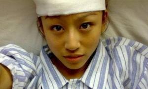 Cô gái 21 tuổi chết vì ung thư gan, bốn thói quen xấu này là thủ phạm gây ung thư