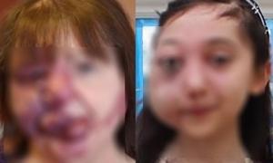 Biến dạng kinh khủng cả khuôn mặt vì tẩy nốt ruồi sai cách, chị em nên cảnh giác cao độ