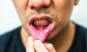 Cảnh báo: Phát hiện 'thủ phạm' mới gây ung thư miệng