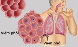 Gặp 6 dấu hiệu này hãy nghĩ ngay tới phổi đang hư hỏng nặng, hãy nhanh chân đi gặp bác sĩ ngay còn kịp