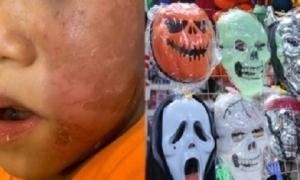 Bé trai 4 tuổi bỏng rộp da mặt sau khi đeo mặt nạ siêu nhân Halloween: Chuyên gia da liễu cảnh báo điều này
