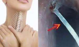 Hóc xương cá đừng có dại mà dùng thứ này chữa kẻo thiệt thân, hãy dắt túi ngay từng bước sơ cứu dưới đây!