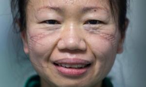 Đương đầu với Covid-19, khuôn mặt của bác sĩ bầm tím, đầy vết hằn: 'Bảo vệ người dân đến hơi thở cuối cùng'
