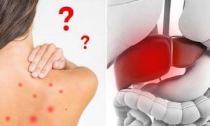 Những dấu hiệu cảnh báo bệnh gan mà bạn không thể bỏ qua, nhất là số 1