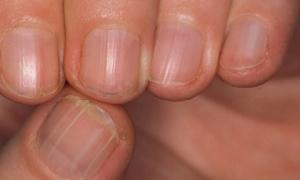 Móng tay có những dấu hiệu này báo hiệu nội tạng mắc bệnh nguy hiểm