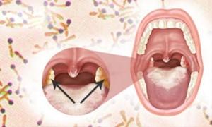 Liên tiếp xuất hiện ổ bệnh bạch hầu: Nguy hiểm thế nào và cách phòng ngừa?
