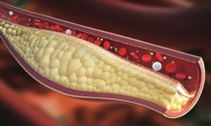 Những dấu hiệu cảnh báo máu nhiễm mỡ, chớ dại chủ quan