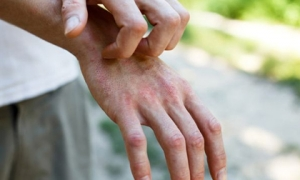 Chuyên gia cảnh báo dấu hiệu lạ trên cơ thể của bệnh nhân mắc Covid-19