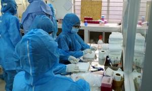 Bộ Y tế thông tin về 01 ca mắc mới COVID-19 và trường hợp tử vong thứ 22
