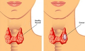 Càng nhiều người trẻ mắc ung thư tuyến giáp, bác sĩ Bệnh viện K khuyến cáo: 'Khi sờ hoặc nhìn thấy khối u xuất hiện vùng cổ, nên đi khám ngay'