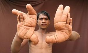 Cuộc sống không tưởng của chàng trai có bàn tay quỷ khổng lồ nhất thế giới, hàng chục năm vẫn khiến giới y học đau đầu