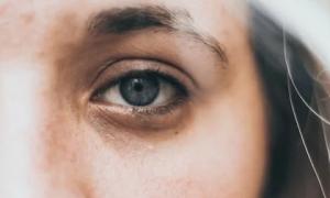 3 bộ phận trên khuôn mặt chuyển màu thâm đen cảnh báo gan và phổi suy yếu, hay đi khám ngay