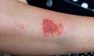 6 dấu hiệu chứng tỏ sức đề kháng yếu, dễ bị vi khuẩn và virus tấn công: Không ai được chủ quan