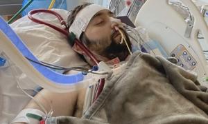Người đàn ông bị Covid-19 'ăn sạch' cả hai phổi và điều kỳ diệu đến từ cảnh tăm tối nhất