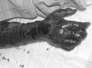 Thực hư vi khuẩn ăn thịt người