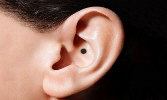 Nốt ruồi mọc ở tai và ở mắt nói lên điều gì?