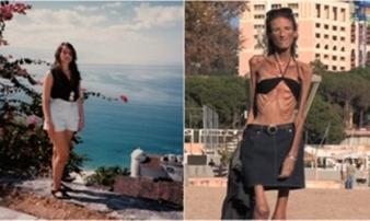 Chỉ vì những lời ác ý về cân nặng, cô gái xinh đẹp biến thành 'xác sống', suốt đời không có ai yêu