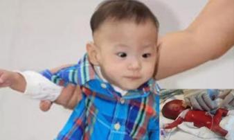 Kỳ tích sống sót của em bé sinh non nhất thế giới, nặng chưa đến 5 lạng, da trong suốt