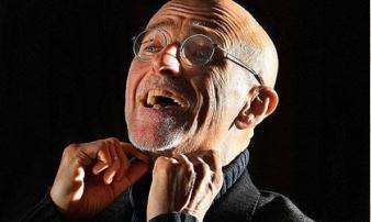 Bác sĩ Italia tuyên bố lần đầu ghép đầu người thành công