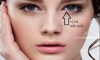 Khám phá ý nghĩa đặc biệt của nốt ruồi mọc trong mắt