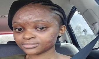 Chủ quan với những vết mụn trứng cá trên mặt, cô gái suýt phải trả giá bằng cả tính mạng