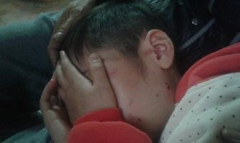 """Bé trai ở Hà Nội bị bố đánh đến gãy xương sườn: """"Lâu lắm rồi con không được ngủ ấm"""""""