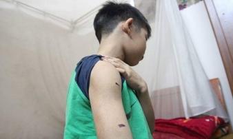 Hà Nội: Bé trai 9 tuổi bị điểm kém, bố dùng dây điện bạo hành dã man