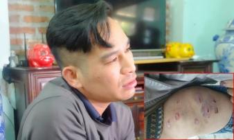 """Vụ bố ruột dùng dây điện đánh đập con trai 9 tuổi dã man: """"Do tôi hơi nóng tính nên đã đánh con"""""""