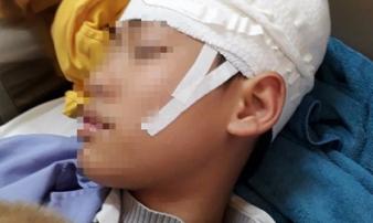 Quảng Ninh: Nam sinh lớp 9 nhập viện, 'nghi' bị thầy giáo tát khiến tụ máu ở đầu