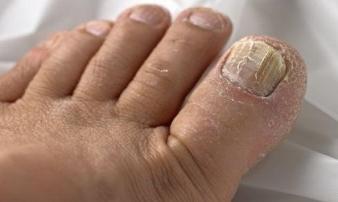 Bắt bệnh chuẩn xác qua dấu hiệu bất thường ở bàn chân mà ai cũng bỏ qua khiến sức khỏe tồi tệ hơn