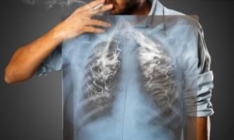 Những nguyên nhân nào dẫn đến căn bệnh ung thư phổi?