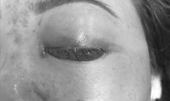 Chủ tiệm spa bị phạt tiền vì tiêm filler gây mù mắt