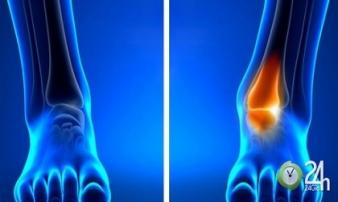 10 dấu hiệu cơ thể ai cũng nghĩ hoàn toàn bình thường nhưng cảnh báo bệnh nan y