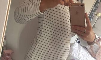 Cô gái trẻ mắc bệnh hiếm gặp khiến bụng như người có bầu 5 tháng mãi không chịu sinh