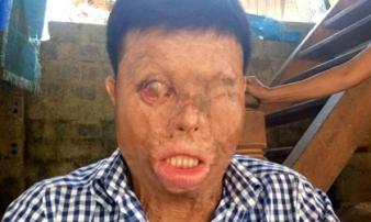 Thanh Hóa: Phận đời khốn khổ của chàng thanh niên bị tạt axit nhầm
