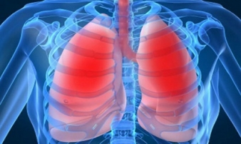 Bị chẩn đoán viêm phổi, người phụ nữ sững sờ khi biết nguyên nhân từ 1 thói quen trong nhà