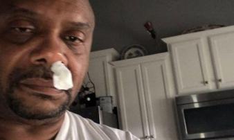 Người đàn ông tưởng cảm cúm suốt 5 năm, không ngờ chảy dịch não nguy hiểm