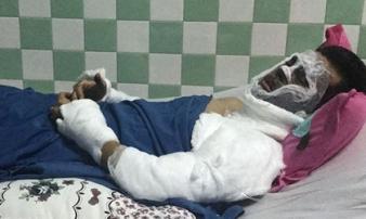 Đối tượng tạt axit, cắt gân chân Việt kiều đối diện mức án nào?