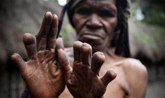 Nơi cứ một người thân qua đời là phụ nữ phải cắt đốt ngón tay để xua đuổi tà ma