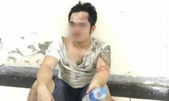 Người đàn ông vô cớ bị hành hung dã man tại chung cư Linh Đàm